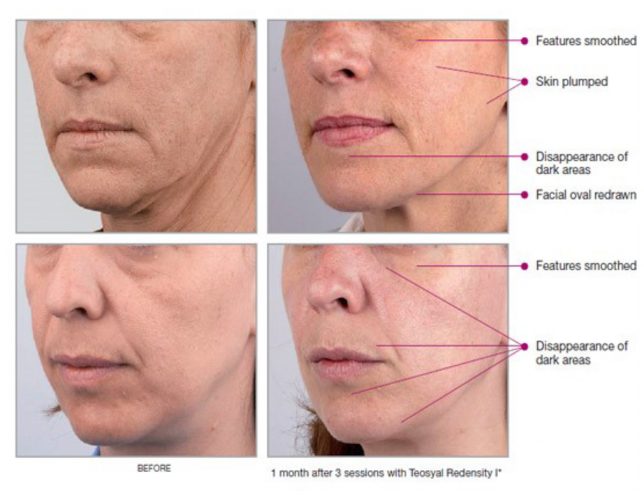 Factors that Make the Dermal Fillers Subjective