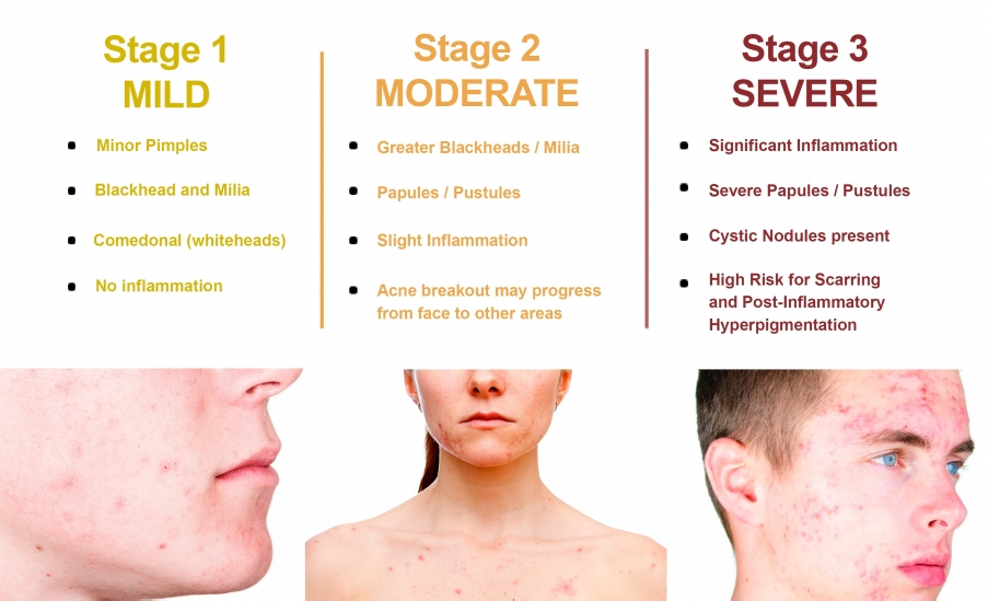 Acne pimples Homeopathy Treatment India