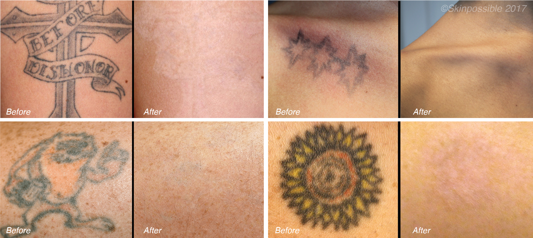 Laser Tattoo Removal - Skinpossible Laser & Light Calgary Laser Clinic
