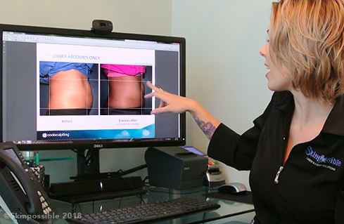 coolsculpting calgary fat freezing