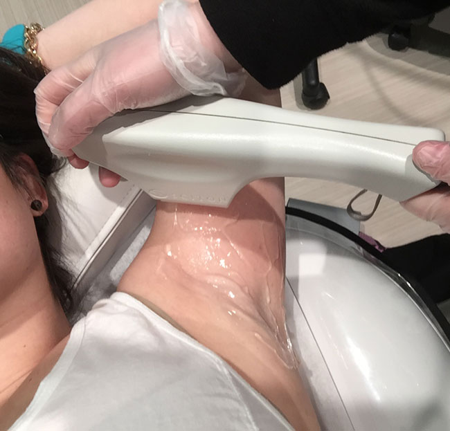 Sciton bbl laser hair removal calgary