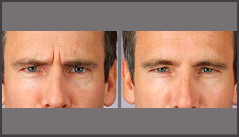 Male Aesthetics Treatments Skinpossible Laser Light Calgary