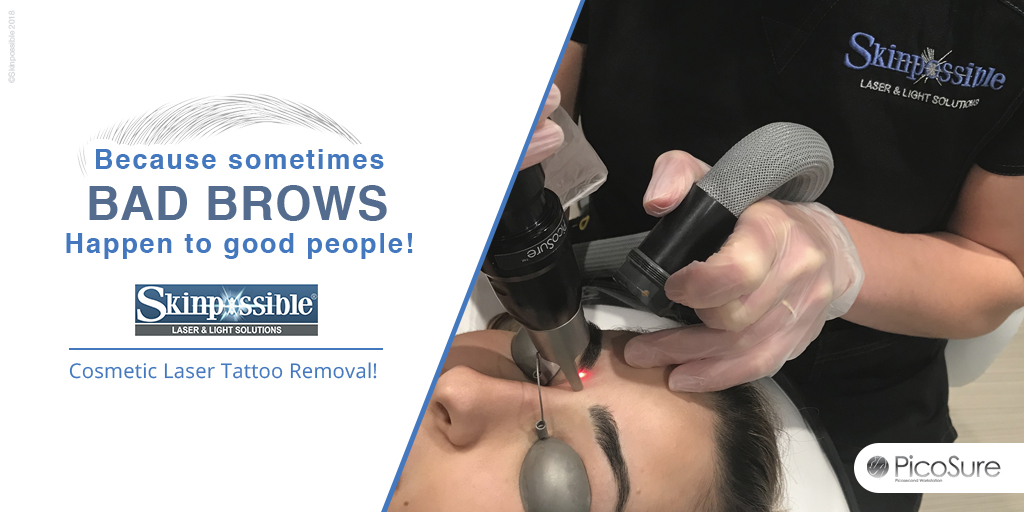 cosmetic-tattoo-removal-eyebrows-microblading-calgary