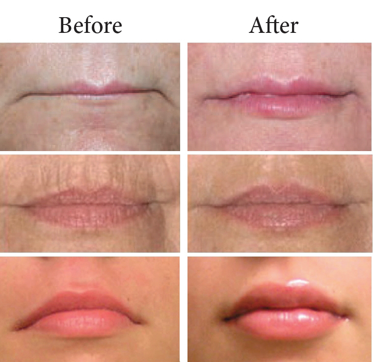 calgary lip filler injections