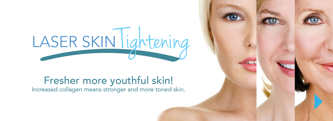 Skintyte Skin Tightening Skinpossible Calgary Laser Clinic